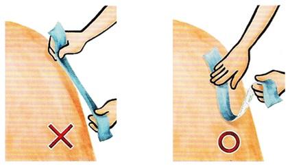 Поставяне на кинезио тейп ленти